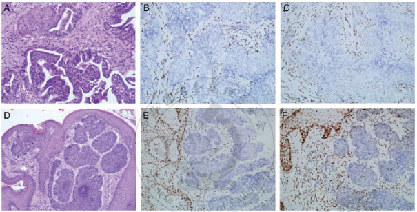Muir-Torre综合征伴MSH2基因移码突变:一例罕见病例报道并文献复习