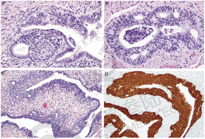 输卵管内具有独特β-catenin表达的新型子宫内膜样致癌序列的证据